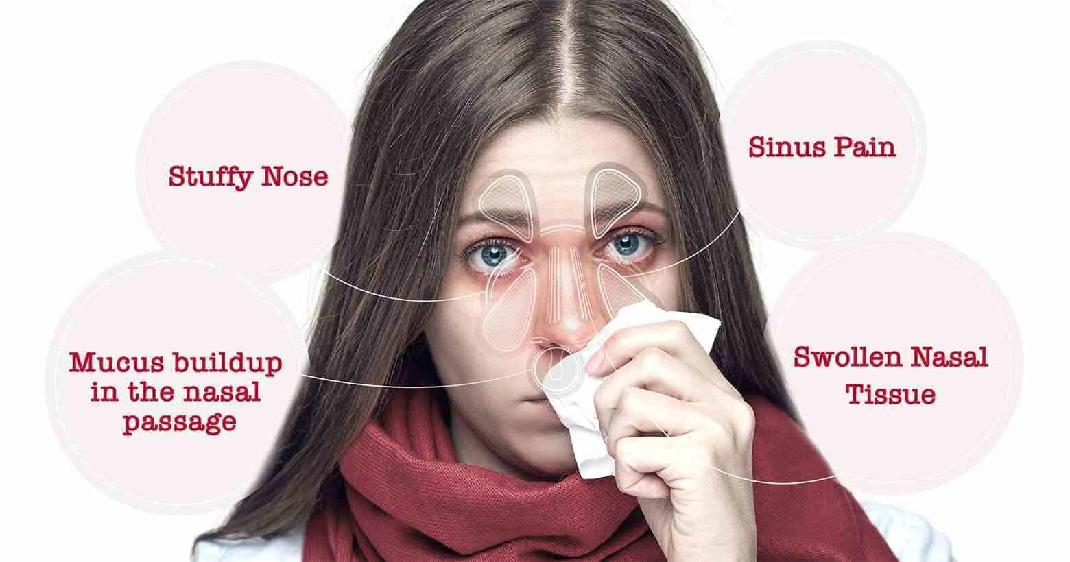 Mucus in Nose - Treatment and Causes