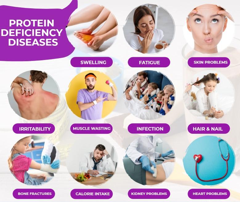 Protein Deficiency Diseases